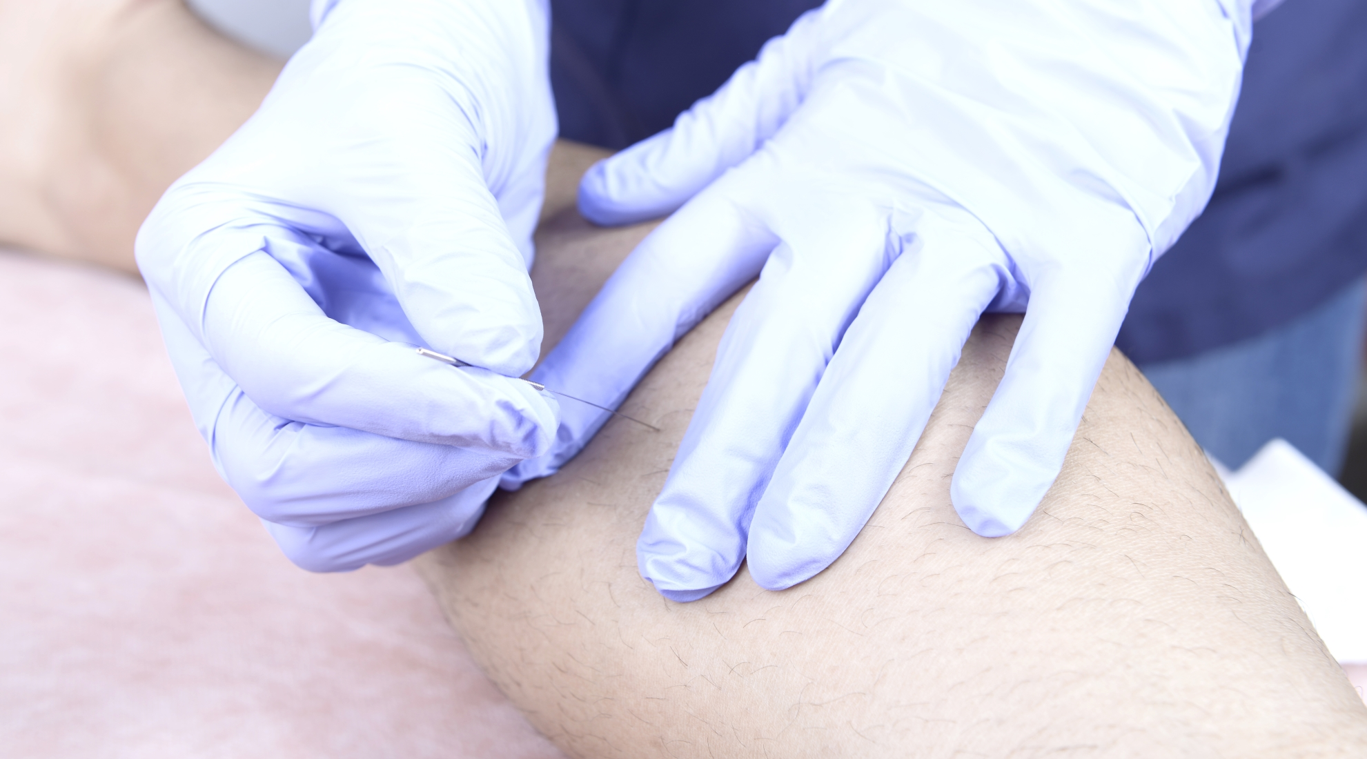 punción seca acupuntura cofer