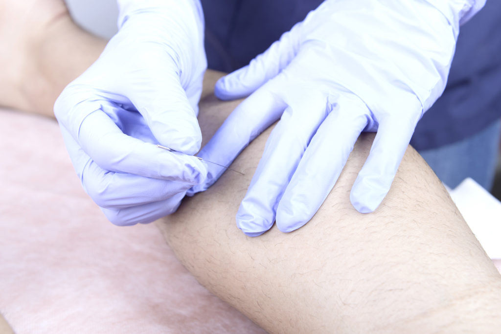 beneficios fisioterapeuta cofer